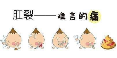山东省立医院西院肛肠科说:容易与痔疮混淆肛肠疾病有哪些?