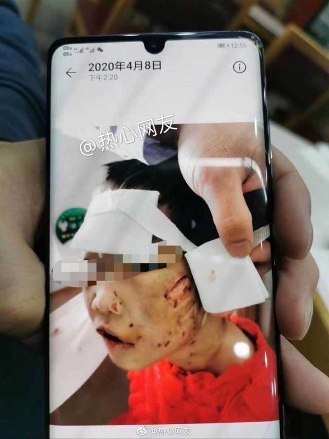 黑龙江被继母和生父虐待女童治疗已花9万仍未苏醒!生母称已欠款