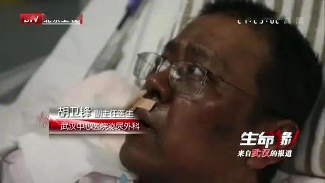 武汉医生感染被救后先变黑,再出血!新冠病毒没你想那样简单!