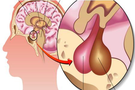 垂体瘤应该如何哪些疾病鉴别