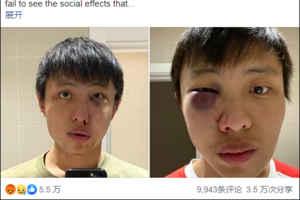 """""""别把新冠病毒带进来""""新加坡留学生在伦敦街头被暴打"""