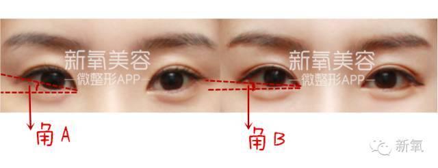 热巴的眼距和林允的瞳距是造成颜值不同的原因吕小军v原因代工图片