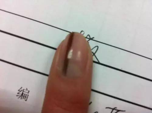 指甲上的这个标志可能是癌症的前兆!赶紧查一下自己的