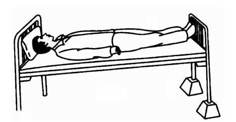肛查时羊水不断从阴道流出,诊断为胎膜早破.应将其安置 a.平卧位 b.图片