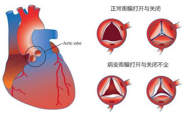 """这个心脏瓣膜""""开关""""坏了,心脏会变大!"""