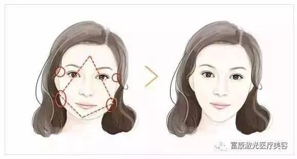 不同脸型的瘦脸方案,菱形脸,大圆脸,国字脸都有救啦!_图片