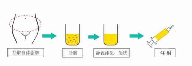 南京自体脂肪隆胸价钱是多少钱