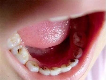 宝宝有蛀牙_小心你宝宝刷牙了还蛀牙!