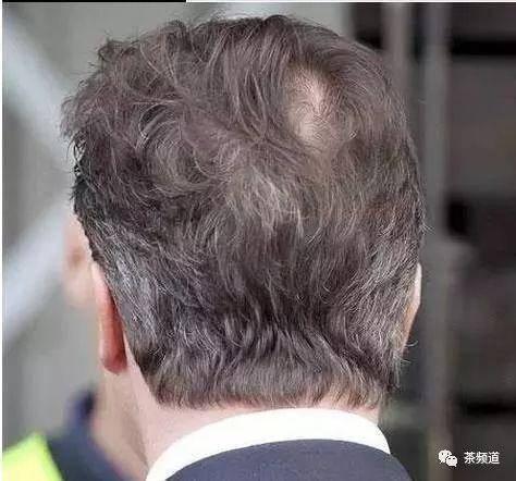 长白发的位置,竟