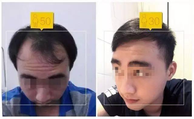 脱发,秃顶,前额光秃.可以这样