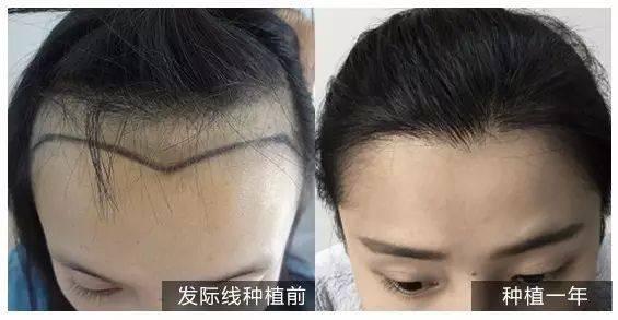 发际线植发术后水肿