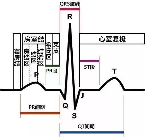 一文读懂|急性心梗的心电图演变