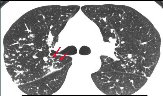 常见肺部疾病的hrct表现(多图)图片