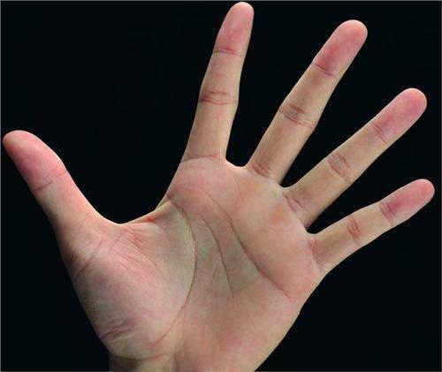 3,手掌发青(绿)