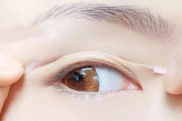 肿眼泡的她贴啥都撑不起眼皮,最后靠拥有手术埋线了美丽的双眼皮.画技绘工笔法国图片