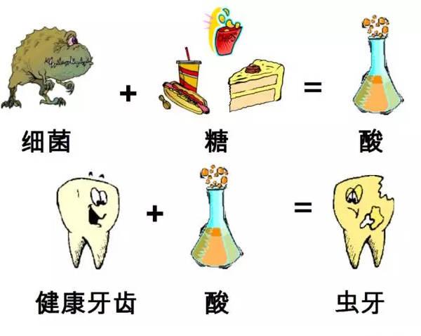 白色和米黄色的龋齿,说明龋坏的发展非常迅速,牙体几乎来不及染色就