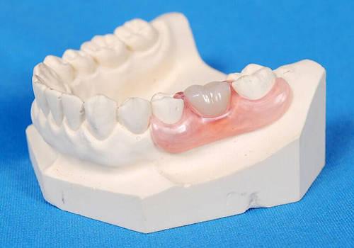 可摘局部义齿图片