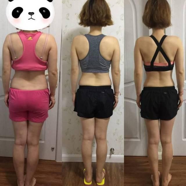 妈妈减掉72斤,还v妈妈15万女生a妈妈甩肉!99%的瘦脸看了有没有副作用针打之后产后图片