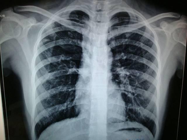 肺结核患者病灶中出现了钙化意味着什么,居然对于排除