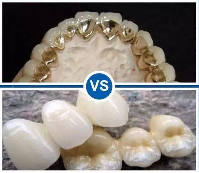 粘烤瓷牙_一字之差丨烤瓷牙和全瓷牙如何选择?