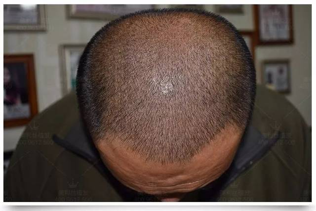 没有遗传性脱发 植发