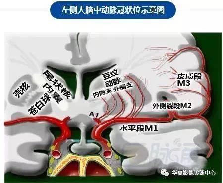 脑部断层 内囊 willis环 前联合 垂体 海马:清晰解剖图谱