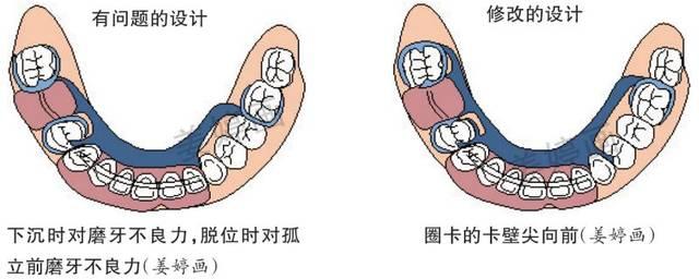 铸造支架可摘局部义齿修复设计,这些要点你注意到了吗图片