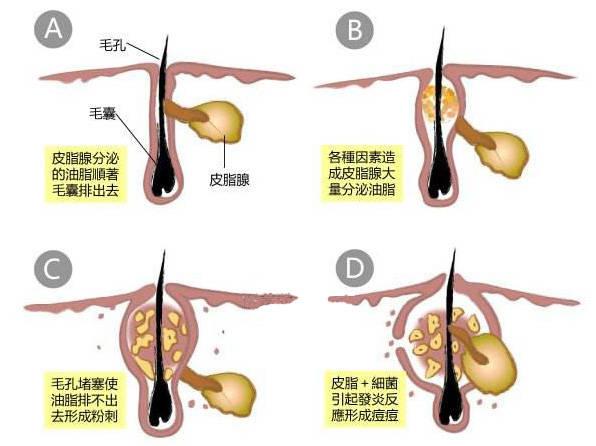 痘痘形成的原因_痘痘产生的直接原因是毛孔堵塞,但因其毛孔堵塞的原因很多,归纳起来