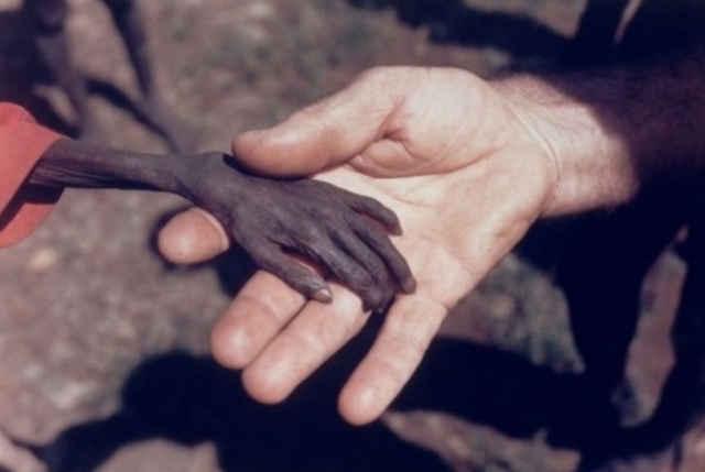 图中一位志愿者轻轻握着一名饥饿的非洲儿童 ,他希望世界上不再有饥饿图片