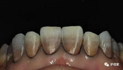 全面盘点 | 四环素牙的成因,负面影响和消除法