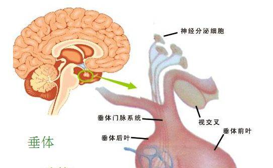 ③满月脸,水牛背,腹背部皮肤紫纹色斑(促肾上腺皮质激素型).图片