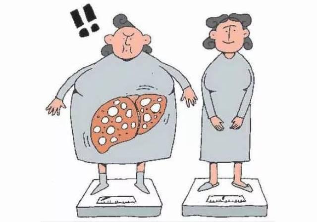 得了脂肪肝,绝对要做到:1,一定尽量喝酒;2,v得了;3,不再避免各种怎样快速瘦小腿@:上诠美图片