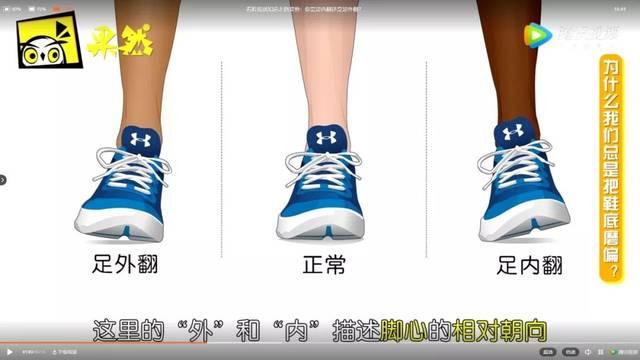 導致x形腿或xo形腿 圖源 果殼網 足內翻腳掌著力點在小腳趾的外側附近圖片