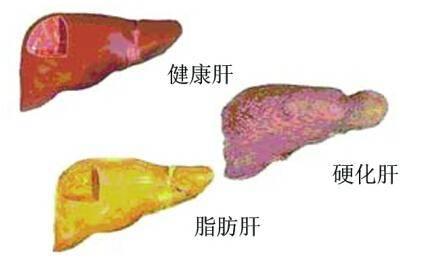 肝区疼痛是怎么回事_严重会反映剧烈,这是由于肝脏肿大牵扯肝包膜造成的疼痛,甚至会牵扯至