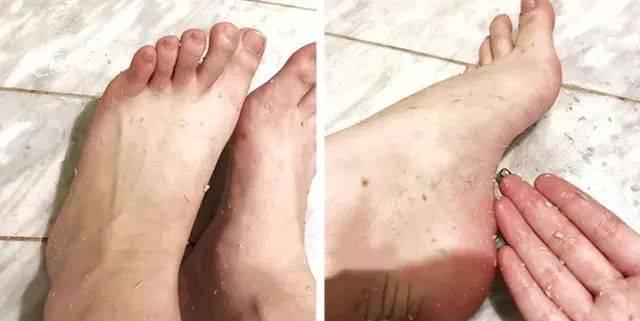 我们的脚趾缝要搓洗,之后擦干,以免因潮湿让霉菌滋生.