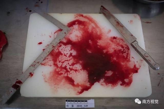肥胖女尸体_解剖过上千具尸体的女法医:与尸体\