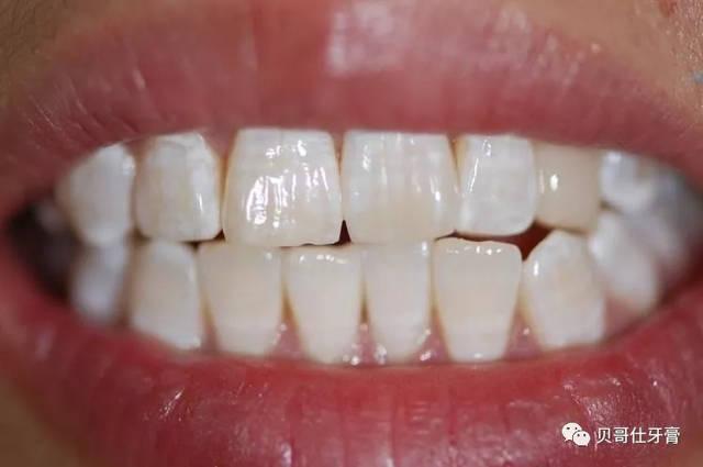 幼儿牙釉质发育不全的最新治疗方法