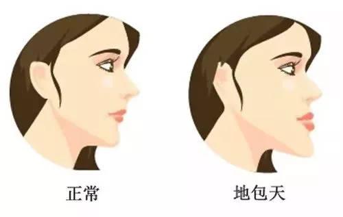 2,地包天(反颌)图片