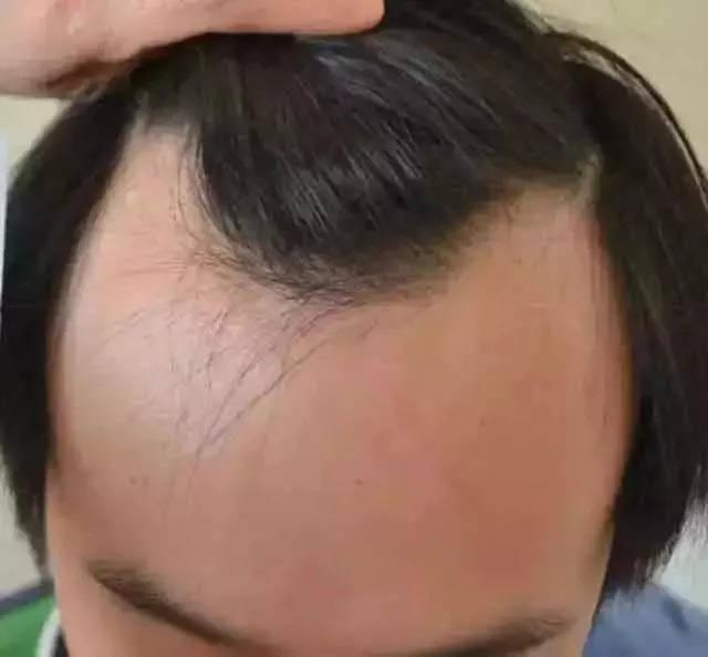 脱发,秃顶,发际线高,前额光秃.据说,它能让掉了的头发重新长出来!图片