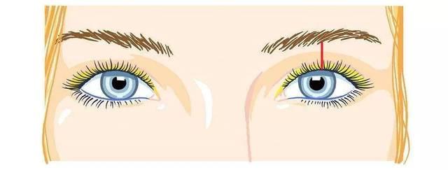这个比较容易理解,如果眼睑距离眉毛太窄,还要切欧式平行双眼皮,就会图片