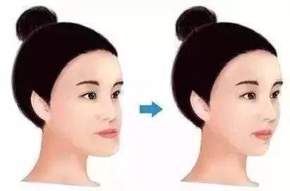 地包天矫正前后脸型对比△图片