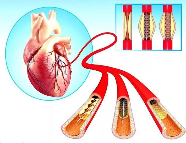 心脏支架后手术危险期 心脏支架需要住重症监护室吗