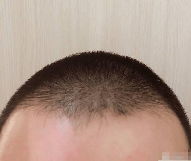 罗志祥理成1cm和尚头,发际线成亮点,网友:求还回头发!图片