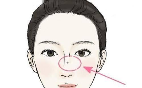 女人鼻子上的痣固)�_2,女人鼻子鼻梁部位有痣相吉凶
