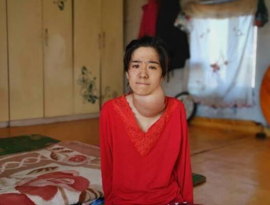 珲春吉林神经患女孩纤维瘤病等急需救助标准级主板维修教程芯片图片