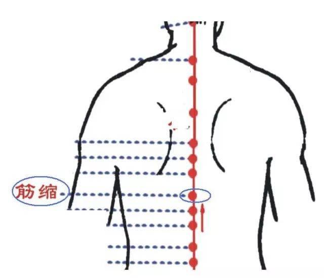 女穴����9��_筋缩穴:背部正中线上,第9胸椎棘突下凹陷中.