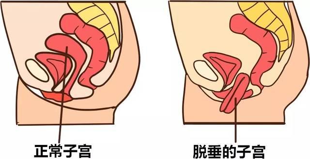 操后妈阴道感觉_常常与尿失禁相伴发生的是阴道前壁膨出 阴道会有异物感,还可能有
