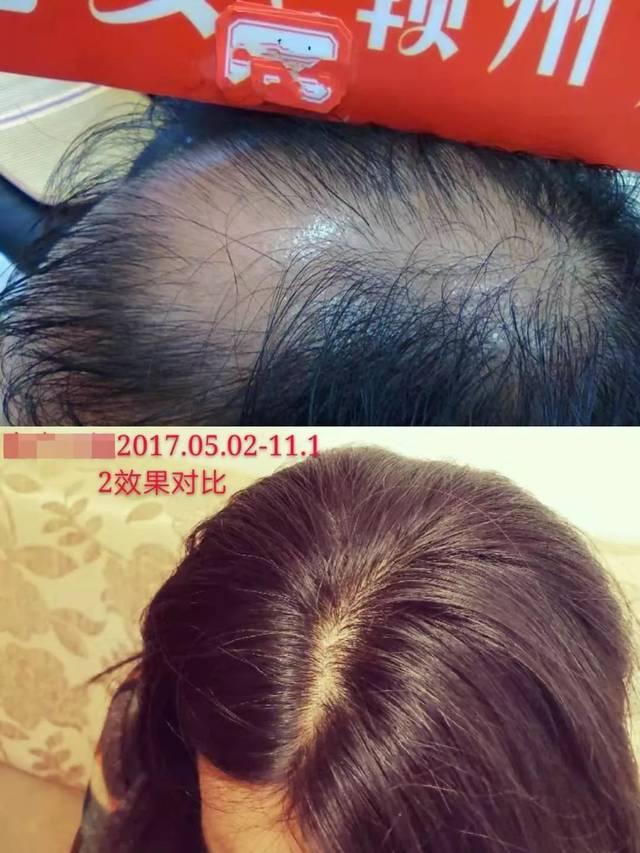 诗碧曼 | 防脱生发!白发长黑不用染,通过高新技术企业