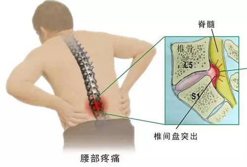 腰椎在哪位置图片-椎间盘突出用什么中药配方外敷有特效