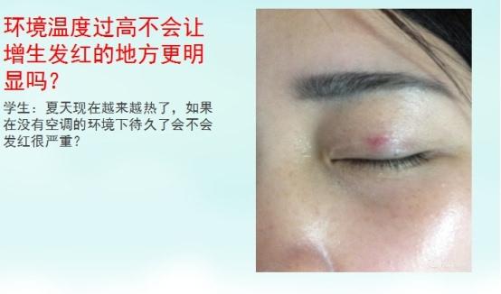 为了防止伤口裂开,皮肤会制造强韧的疤痕组织将伤口有效的连接起来,受